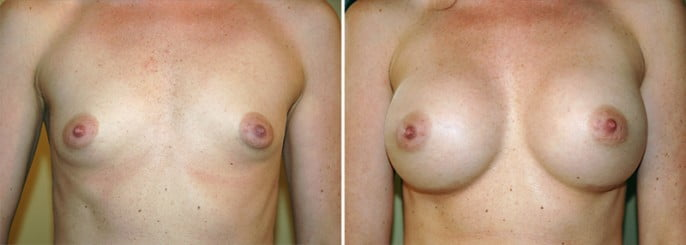 Maryland Breast Augmentation 1