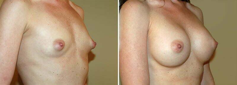 Maryland Breast Augmentation 1