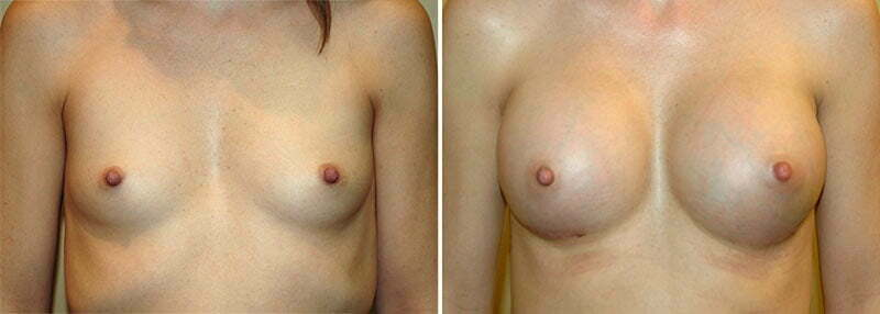 Breast Augmentation Patient 12