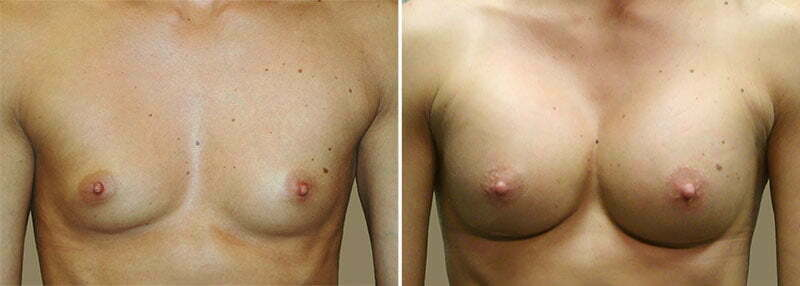 Breast Augmentation Patient 13