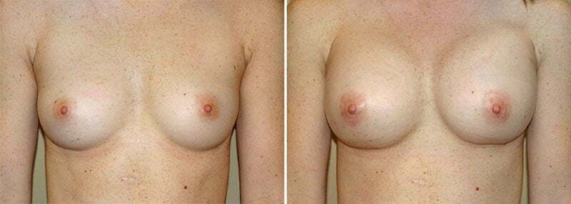 Breast Augmentation Patient 14