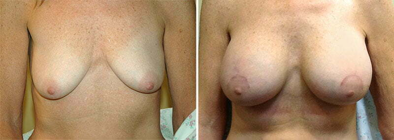 Breast Augmentation Patient 15