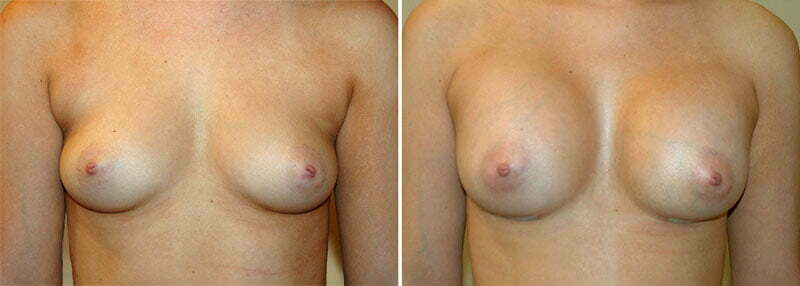Breast Augmentation Patient 16