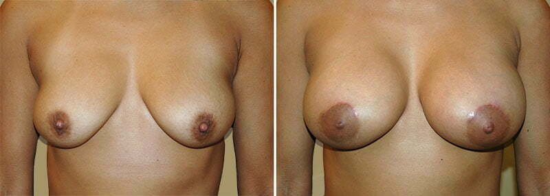 Breast Augmentation Patient 18
