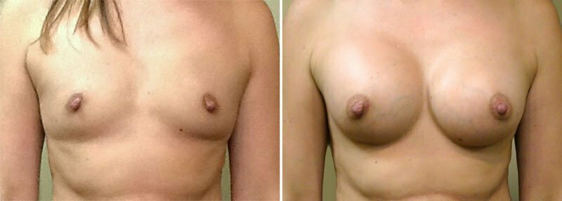 Breast Augmentation Patient 19