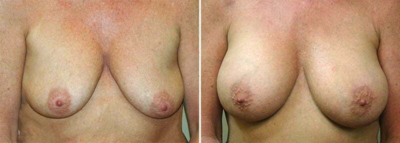 Breast Augmentation Patient 20