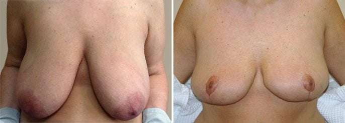 breast-lift-13399a-garazo