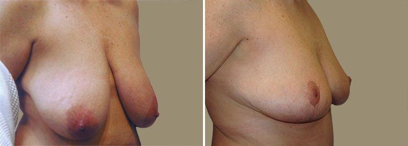 breast-lift-13399b-garazo