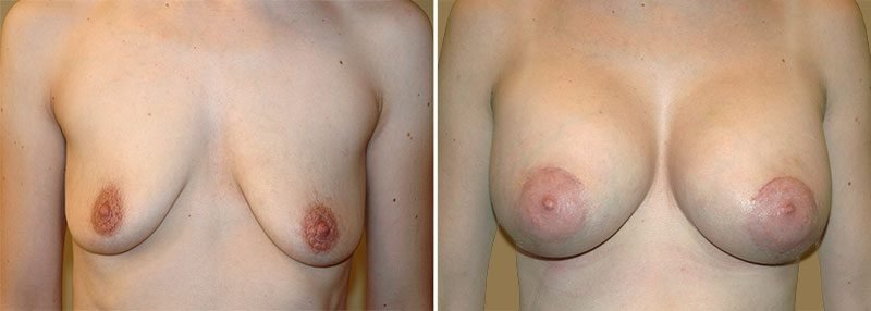 breast-lift-with-augmentation-13369a-garazo