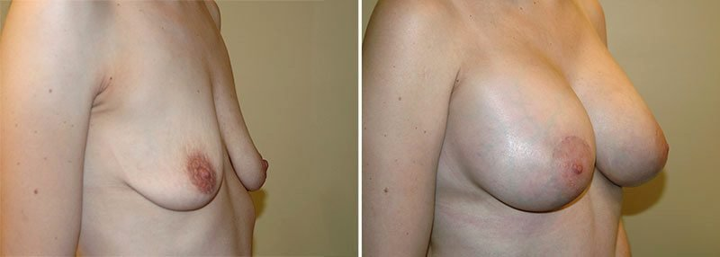 breast-lift-with-augmentation-13369b-garazo
