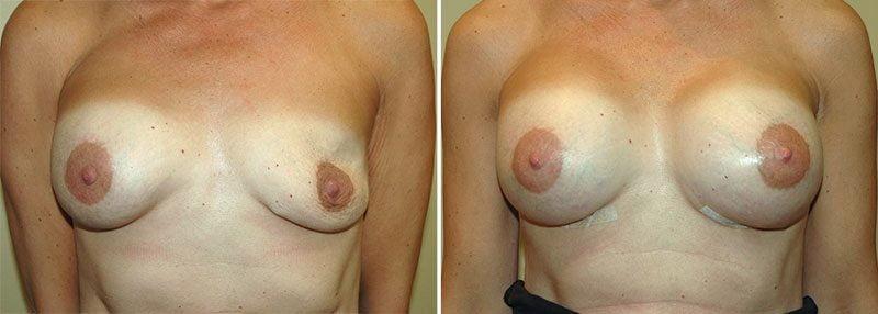 revision-breast-augmentation-13356a-garazo