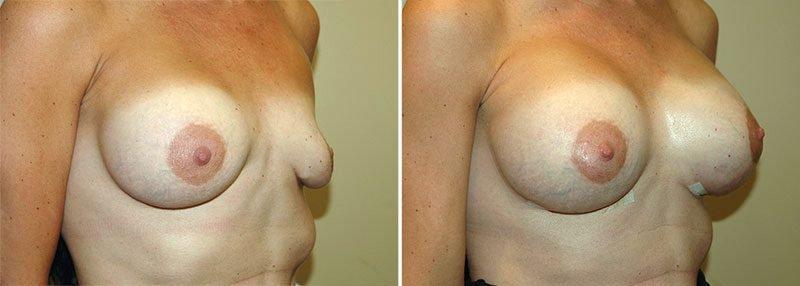 revision-breast-augmentation-13356b-garazo