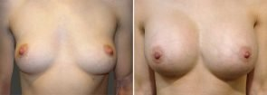 Breast Augmentation Patient 23