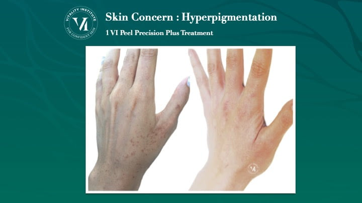 hand hyperpigmentation before after